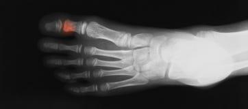 Imagem do raio X da opinião oblíqua do pé Imagens de Stock
