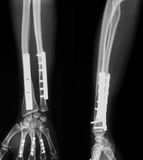 Imagem do raio X de antebraço quebrado Imagem de Stock