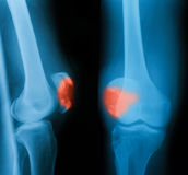 Imagem do raio X de joelho quebrado AP e vista lateral Fotos de Stock