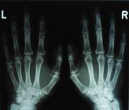Imagem do raio X das mãos Fotografia de Stock Royalty Free
