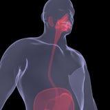 Imagem do raio X de uma pessoa. Digestão dorido Imagem de Stock
