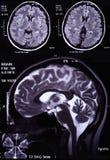 Imagem do raio X do cérebro Foto de Stock Royalty Free