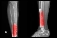 Imagem do raio X do pé da fratura (tíbia) Foto de Stock Royalty Free