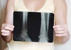 Imagem do raio X dos pés Imagens de Stock Royalty Free