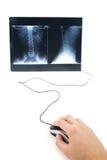 Imagem do raio X e rato do computador Imagens de Stock