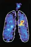 Imagem gráfica que mostra a doença no pulmão humano fotos de stock