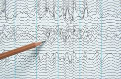 Imagem latente da gravação da eletroencefalografia do ser humano fotos de stock