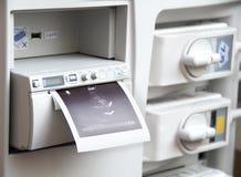 Imagem médica do sistema do ultra-som fotografia de stock royalty free