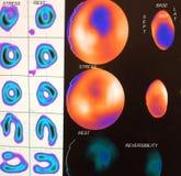 Imagem miocárdica moderado da isquemia Fotografia de Stock Royalty Free