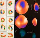 Imagem miocárdica moderado da isquemia Foto de Stock