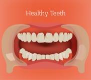Imagem saudável dos dentes ilustração royalty free
