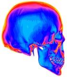 Imagem térmica do crânio humano Foto de Stock