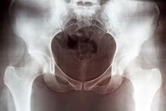 Imagen con guantes de la pelvis femenina, vista delantera de la radiografía de la tenencia de la mano imágenes de archivo libres de regalías