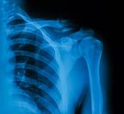 Imagen de la clavícula, opinión de la radiografía del AP Fotos de archivo