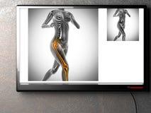Imagen de la exploración de la radiografía de los huesos del ser humano Fotos de archivo libres de regalías