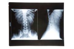 Imagen de la radiografía Fotos de archivo