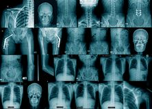 Imagen de la radiografía de la colección imágenes de archivo libres de regalías