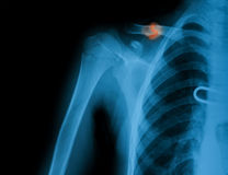 Imagen de la radiografía de la clavícula quebrada Imágenes de archivo libres de regalías