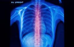 Imagen de la radiografía de la columna espinal humana Foto de archivo libre de regalías