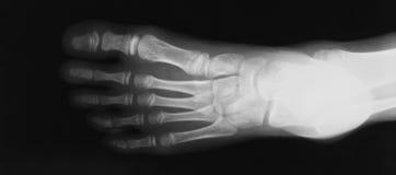 Imagen de la radiografía de la opinión del pie AP Fotos de archivo libres de regalías