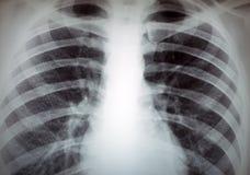 Imagen de la radiografía de Torax Fotografía de archivo