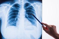 Imagen de la radiografía de un pecho humano Imagenes de archivo