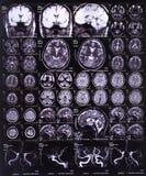Imagen de la radiografía del cerebro Imagen de archivo libre de regalías