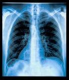 Imagen de la radiografía del pecho Imagenes de archivo
