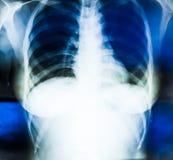Imagen de la radiografía del pecho humano Imagen de archivo libre de regalías