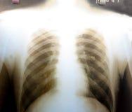 Imagen de la radiografía del pecho humano Fotografía de archivo
