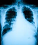 Imagen de la radiografía del pecho, opinión vertical del AP Foto de archivo libre de regalías
