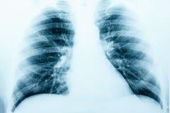 Imagen de la radiografía del pecho sano humano MRI imagen de archivo libre de regalías