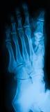 Imagen de la radiografía del pie, opinión del AP Fotografía de archivo libre de regalías