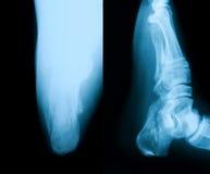 Imagen de la radiografía del talón quebrado Imagen de archivo