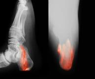 Imagen de la radiografía del talón quebrado Imagenes de archivo