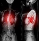 Imagen de la radiografía de la espina dorsal entera Scanography AP y visión lateral imagenes de archivo