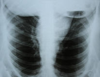 Imagen de la radiografía de los huesos Fotografía de archivo libre de regalías
