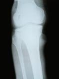 Imagen de la radiografía de los huesos Imágenes de archivo libres de regalías