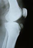 Imagen de la radiografía de los huesos de la pierna Imagenes de archivo