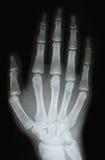 Imagen de la radiografía de los huesos del brazo Foto de archivo libre de regalías