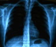 Imagen de la radiografía del pecho sano humano Imagen de archivo