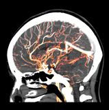 imagen de la representación 3D del cerebro humano que muestra arterias normales en la cabeza por el ESCÁNER del CT fotos de archivo