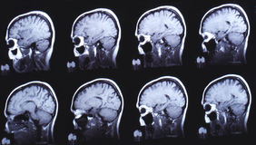Imagen de la tomografía computada el cerebro negro Fotos de archivo libres de regalías