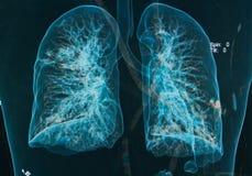 Imagen de los pulmones 3d de las radiografías del pecho Foto de archivo libre de regalías