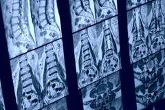 Imagen de MRI de la espina dorsal humana Imágenes de archivo libres de regalías