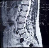 Imagen de MRI de la espina dorsal humana Fotos de archivo