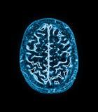 Imagen de resonancia magnética (MRI) del cerebro imagen de archivo