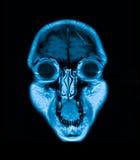 Imagen de resonancia magnética principal de Mri fotografía de archivo libre de regalías