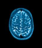 Imagen de resonancia magnética principal de Mri foto de archivo