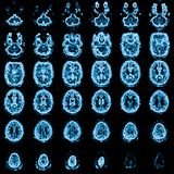 Imagen de resonancia magnética principal de Mri foto de archivo libre de regalías